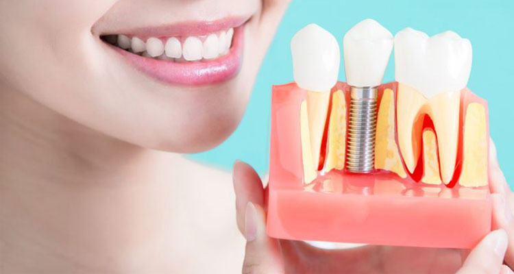 How to dental implants retained with dentures?
