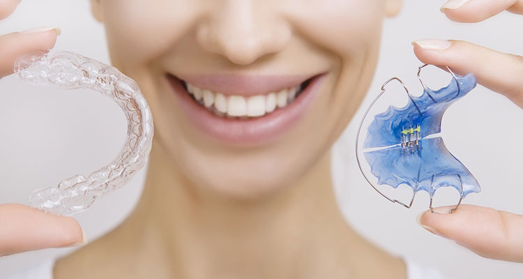 5 Top Differences Between Invisalign And Ceramic Braces