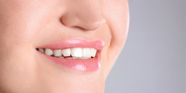 Smile and Full Mouth Correction